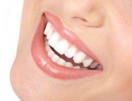beautiful-white-smile